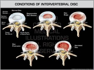 Condition of Intervertebral Disc